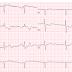 E-learning: Levensbedreigende ECG afwijkingen - Hyperacute T Golven