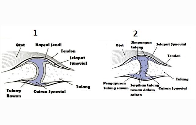 Bagian dan Struktur Sendi