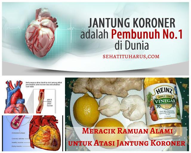 Ramuan Alami Untuk Mengatasi Penyakit Jantung Koroner