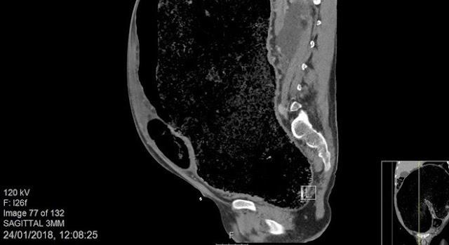 Doença leva à ruptura de intestino devido a excesso de fezes