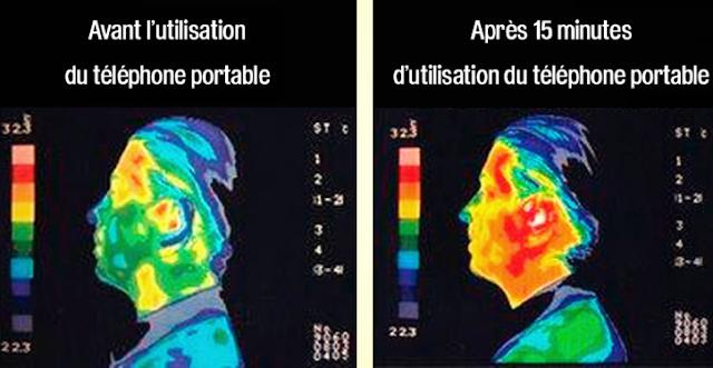 Graphique basé sur une personne utilisant le téléphone - Avant et Après