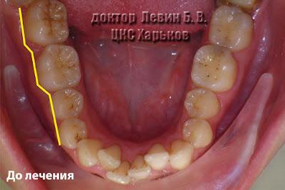 На фото видно, что зубы в боковом участке находятся на ломаной линии