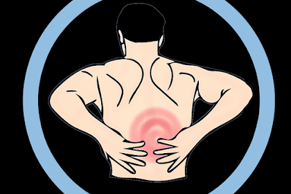 How to Cure Sciatica Pain Without a Single Pain-Killer?