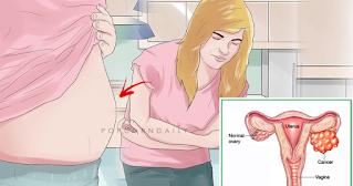 Häufige Anzeichen und Symptome von Eierstockkrebs Frauen oft ignorieren
