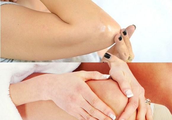 10 Bahan Alami Untuk Untuk Mencerahkah Siku Dan Lutut