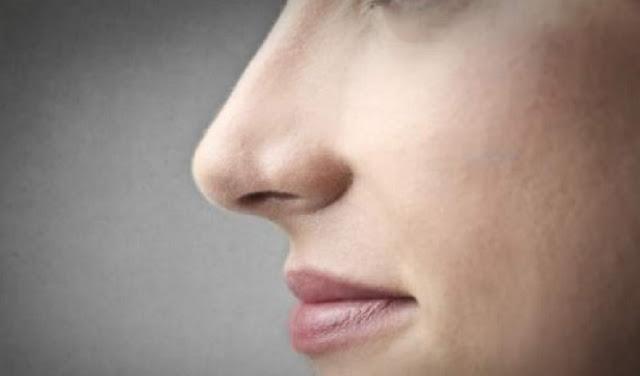 Cara Alami Atasi Kulit Kering Disekitar Bibir