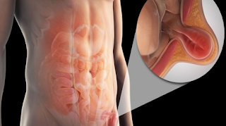 A hernia occurs when an internal part of the body pushes through a weakness in the muscle or surrounding tissue wall