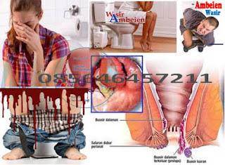 Obat Wasir (Hemoroid) Aman Dan Tanpa Efek Samping