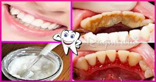 وصفة-مجربة-لازالة-الجير-وتبييض-الاسنان