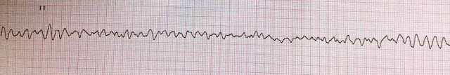 Cardiac arrest due to ventricular fibrillation (VF)
