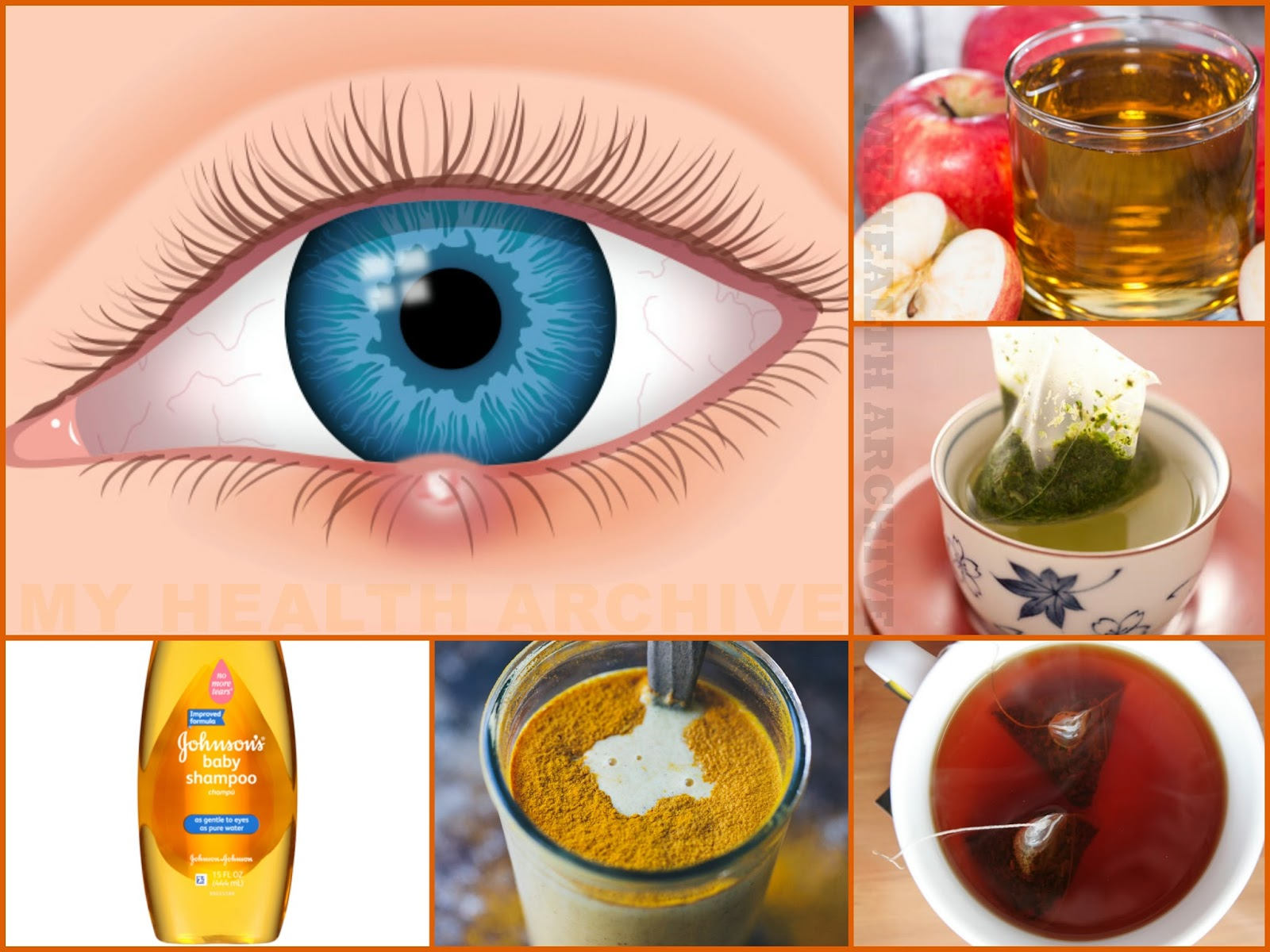 How To Treat A Stye Naturally