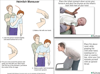 Image result for heimlich maneuver