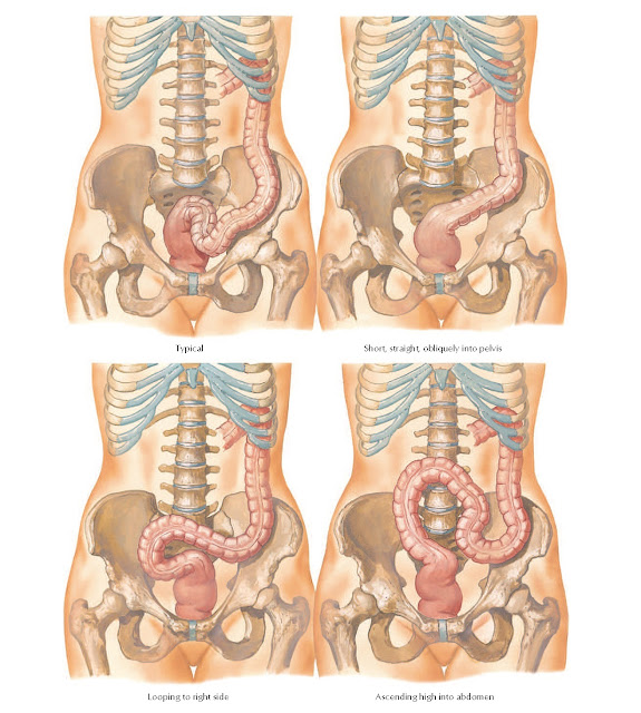 Sigmoid Colon: Variations in Position Anatomy