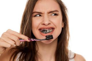 Cara Memutihkan Gigi dengan Arang dan Efek Sampingnya