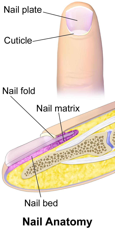 Bump Under Fingernail : under, fingernail, Congenital, Differences:, Fingernail