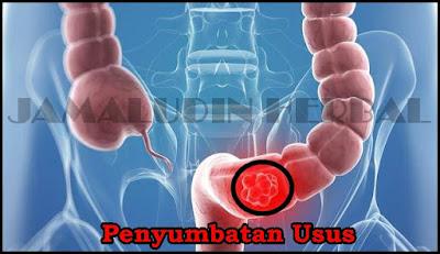 https://pengobatanmultikhasiat30.blogspot.com/2018/09/cara-mengobati-penyumbatan-usus-secara.html
