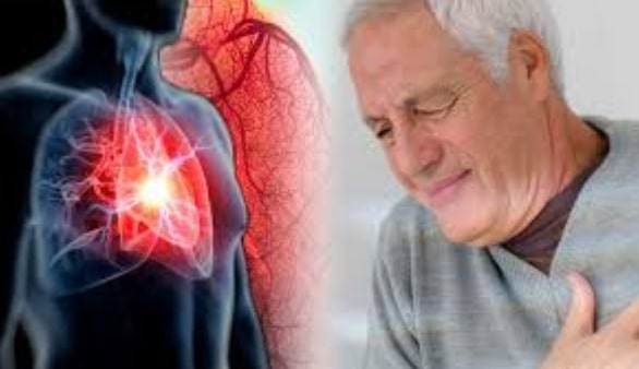 Penyebab Penyakit Katup jantung
