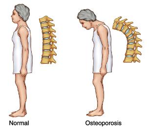 Osteoporosis, macam mana nak cegahh??