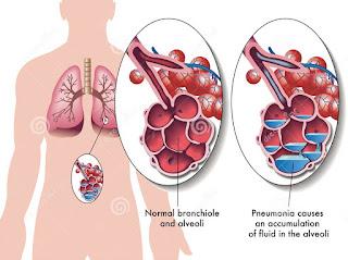 Bau Mulut yang berasal dari hidung