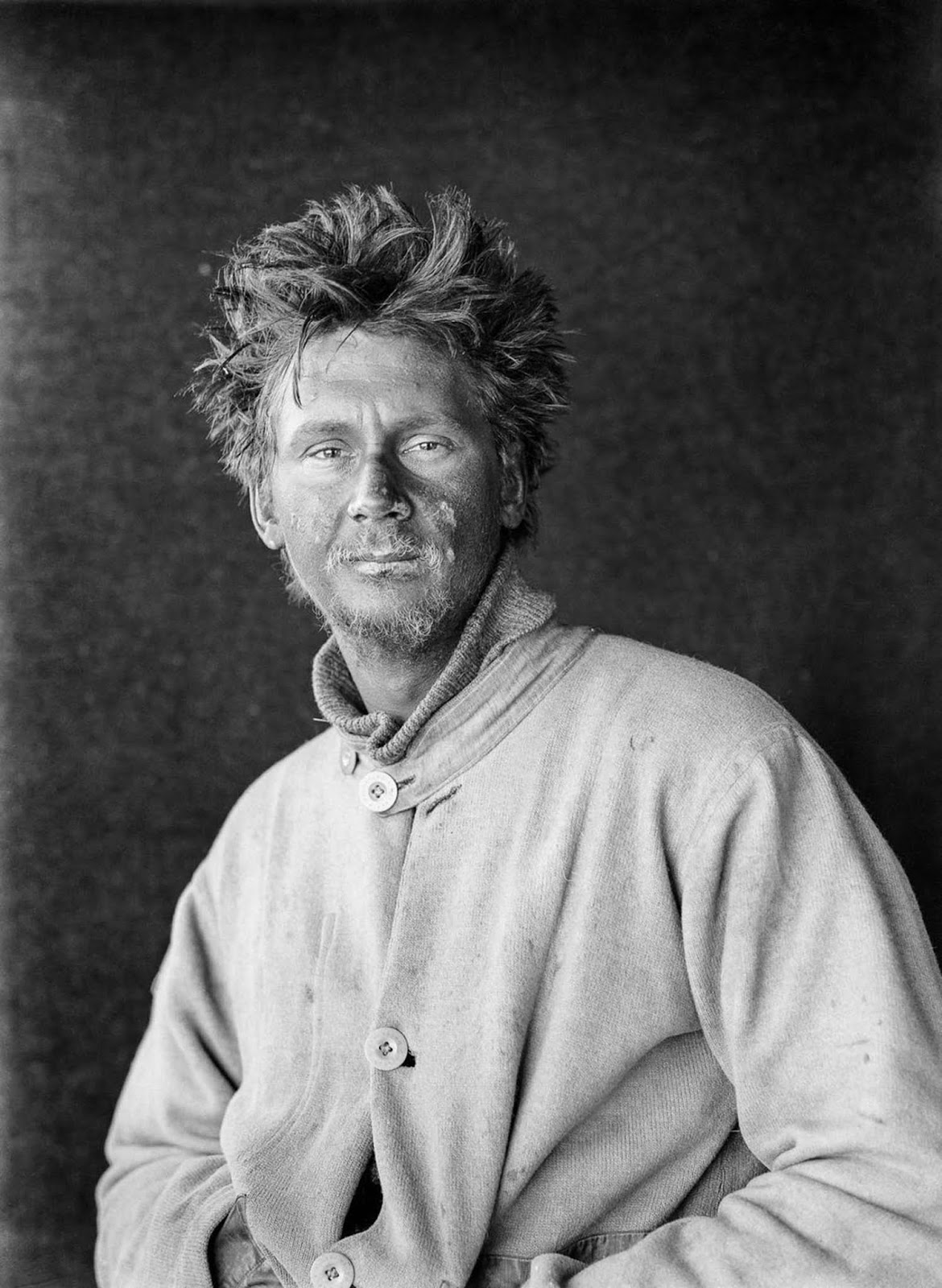 A frostbitten Charles Wright at camp after returning from the Great Ice Barrier as part of the first support party aiding Scott's push to the South Pole. January 1912.
