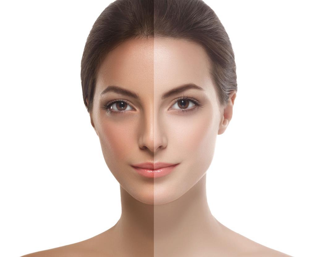 Kaya Skin Clinic Reviews: Bid Adieu to Tan Lines on Your Face with