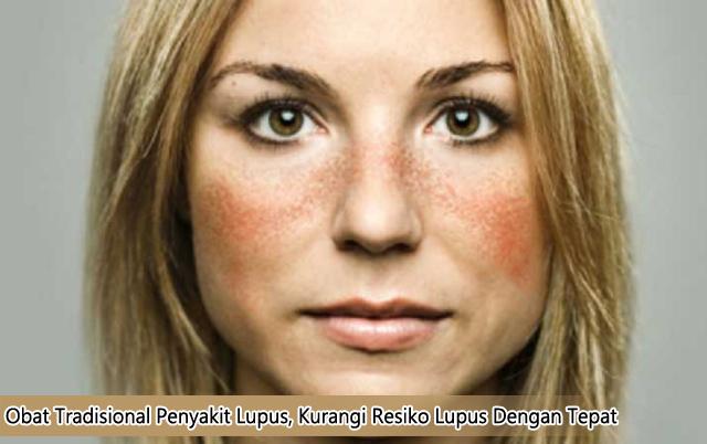 Obat Tradisional Penyakit Lupus, Kurangi Resiko Lupus Dengan Tepat