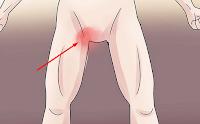 Cara Menghilangkan Gatal pada Kemaluan Pria secara Herbal