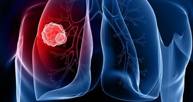 Lung Cancer Mesothelioma Life Expectancy