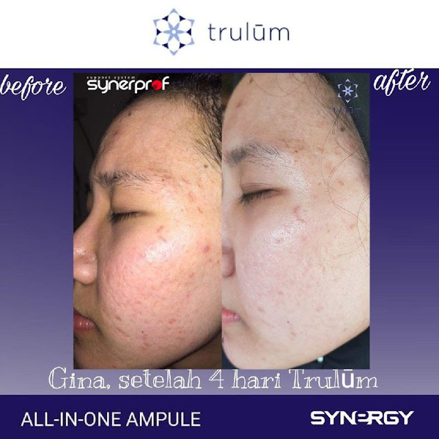 Jual Trulum Serum Anti Aging Di Sungailiat Bangka
