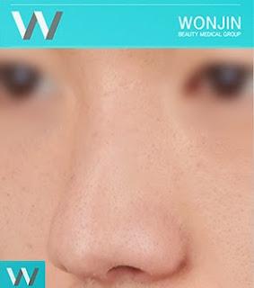 korean best rhinoplasty wonjin