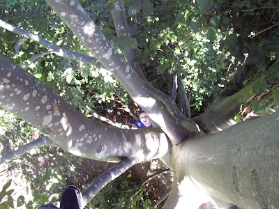 st james hospital milton tree climbing
