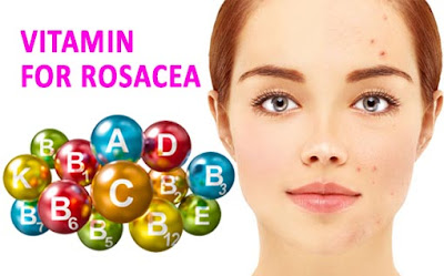 Best Vitamins For Rosacea