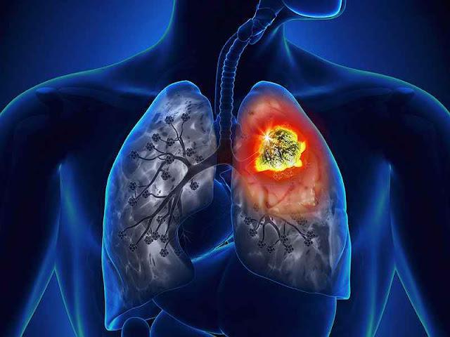 سرطان الرئة الأكثر شيوعاً.. أعراضه والأسباب