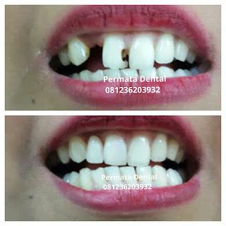 pasang gigi palsu bali| pasang gigi palsu denpasar| pasang gigi palsu nusa dua | pasang gigi palsu jimbaran | pasang gigi palsu badung | pasang gigi tiruan lepas pasang | pasang gigi palsu  copot pasang  | pasang gigi palsu mudah| pasang gigi palsu balung | pasang gigi palsu aman | pasang gigi palsu murah | pasang gigi palsu cepat | pasang gigi palsu bagus | pasang gigi palsu geraham | pasang gigi palsu depan | pasang gigi palsu bawah | pasang gigi palsu atas | pasang gigi palsu anak | pasang gigi palsu dewasa | pasang gigi palsu lepas pasang | pasang gigi palsu promo | gambar atau foto gigi palsu lepas pasang