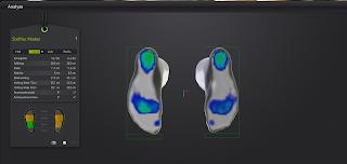 Druckbild Füße