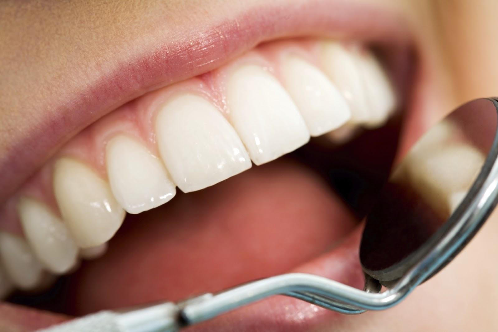 Inilah Penyebab dan Cara Mencegah Gigi Berlubang
