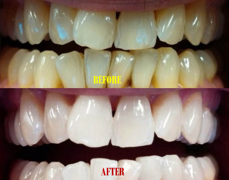 Teeth Whitening with Baking Soda