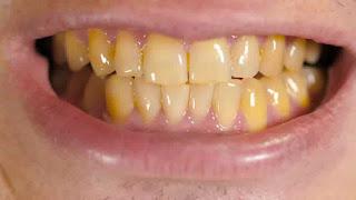 gigi kuning putihkan dengan karbon aktif