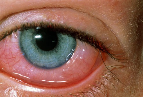 وصفات طبيعية لعلاج دمعة العين