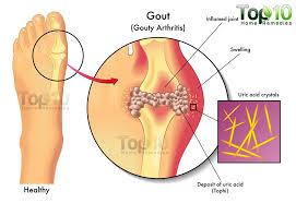 kenőcs viprosális osteochondrozishoz