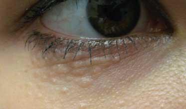 syringoma eyelid eyelid bumps