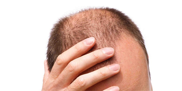 Hair Tonic Penumbuh Rambut, Obat Penumbuh Rambut, Hair Tonic Paling Bagus, Riview Hair Tonic, Menumbuhkan Rambut Dengan Hair TOnic, Obat Rambut, Hair Tonic Terbaik