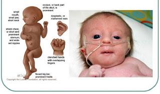 kasus edward syndrome pada bayi