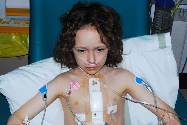 What Causes Congenital Heart Defects?