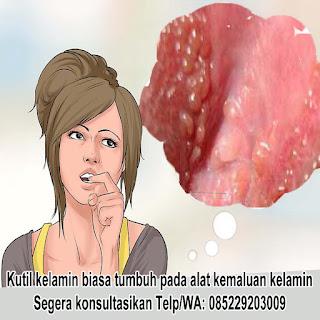Gambar OBAT KUTIL KELAMIN 100% EFEKTIF DI APOTIK KIMIA FARMA K24