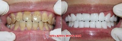 so sánh răng sứ kim loại và răng sứ không kim loại -11