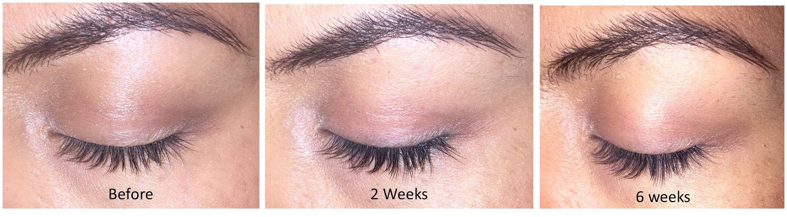 d653351c831 Thicker, Fuller Lashes with Zoria Boost Lash Intensifying Serum ...