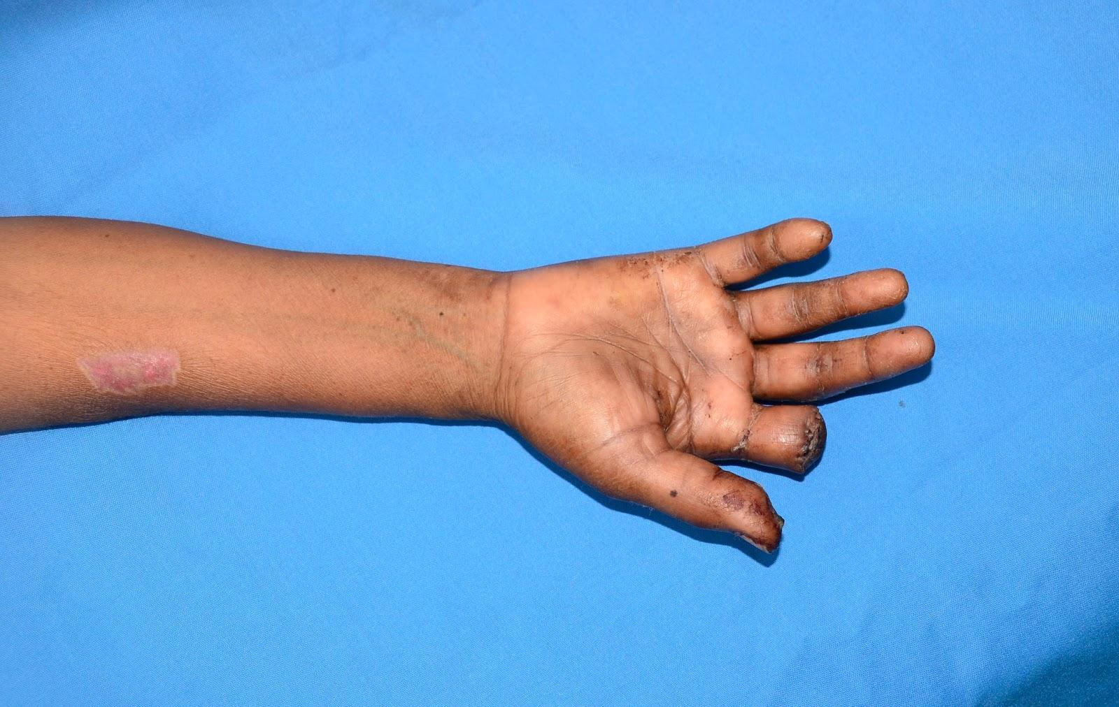 deep palmar space of hand - HD1600×1012
