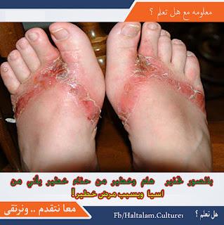 بالصور تحذير  هام وخطير من حذاء خطير يأتي من اسيا  ويسبب مرض خطير!