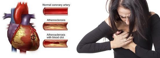 Obat Jantung Koroner, Cara Ampuh Menyembuhkan Jantung Koroner Tanpa Operasi